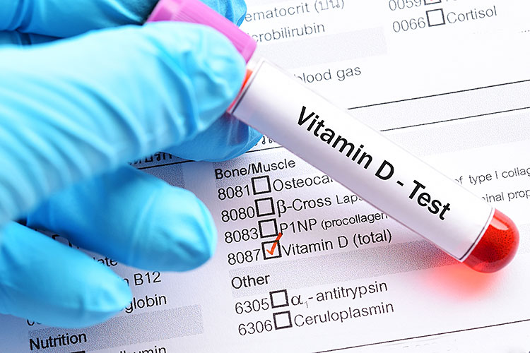 Vitamin D Reduces COVID Deaths Study Review Finds Times Publishing Group Inc tpgonlinedaily.com